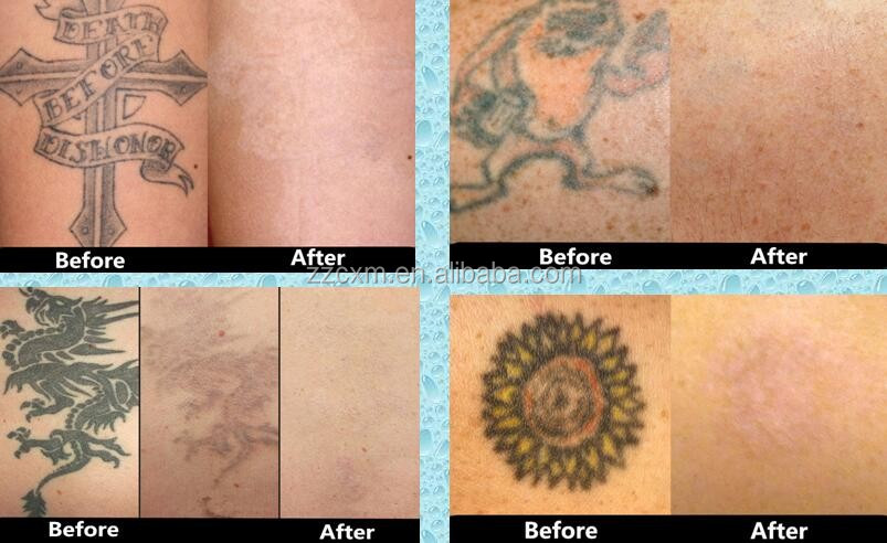 high quality Yag Laser Tattoo Removal Beauty Laser