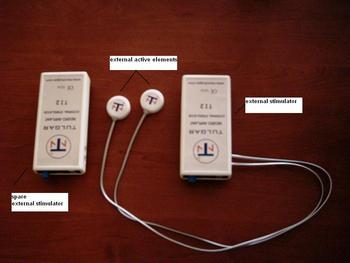 Phrenic Nerve Stimulator Implant - Buy Phrenic Nerve Stimulator Product on  Alibaba com