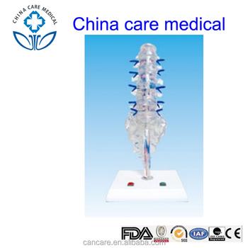 Human Anatomy Lumbar Sacral Vertebrae Intervertebral Disks And ...