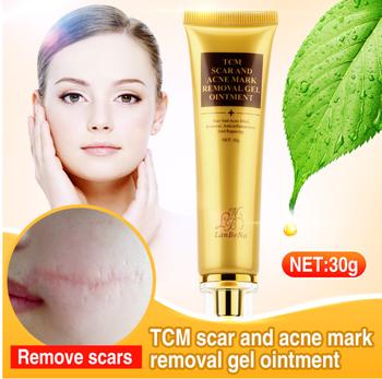 Best Selling Skin Care Dark Spot Whitening Acne Free Gel Face Acne Scar  Removal Cream - Buy Best Selling Skin Care Cream,Dark Spot Whitening