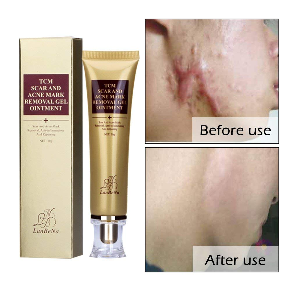Cheap Scar Removal Cream Find Scar Removal Cream Deals On Line At