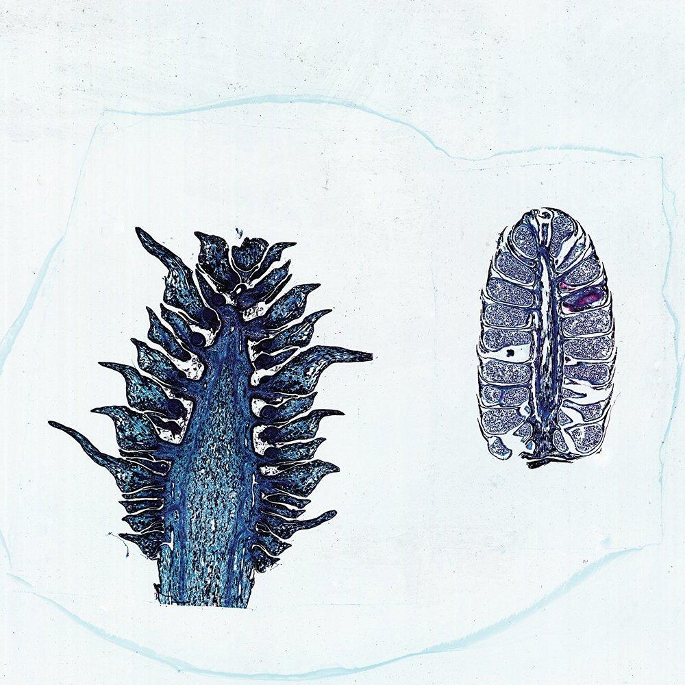 Male and Female Pine Cones, l.s., 12 m Microscope Slide