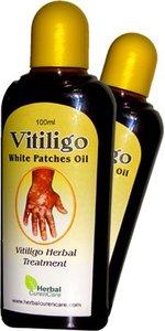 Vitiligo Oil Wholesale, Vitiligo Suppliers - Alibaba