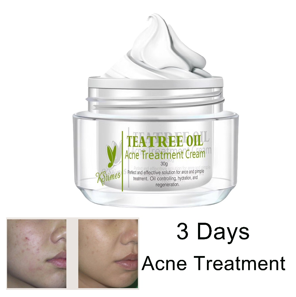 Japanese Acne Treatment Free Gel Best Acne Cream For Acne