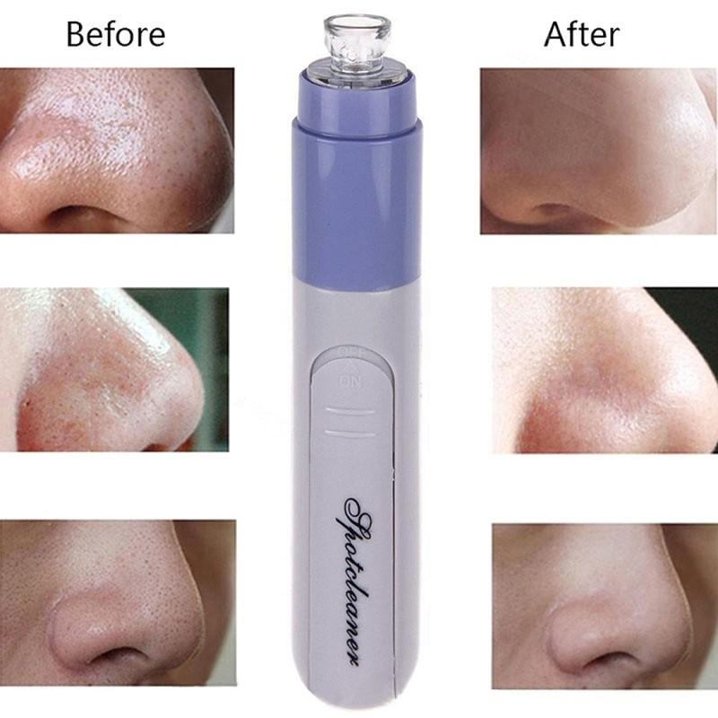 Online Shopping Facial Pore Cleanser Blackhead Vacuum