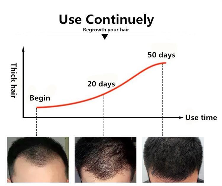 แนะนำธรรมชาติ 2017 ฉลากส่วนตัว anti hair loss OEM Hair Growth Serum ได้เร็วขึ้น grow hair