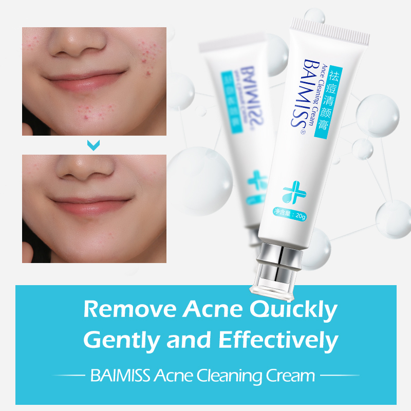 Hot Anti Face Acne Scar Treatment Pimple Removal Out Cream For Men - Buy  Face Scar Removal Cream,Acne Removing Cream For Men,Acne Out Cream Product  on