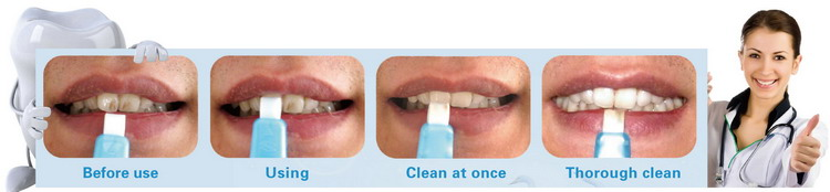 Private Label Manufacturers Tooth Whitening For Teeth Black Smoke