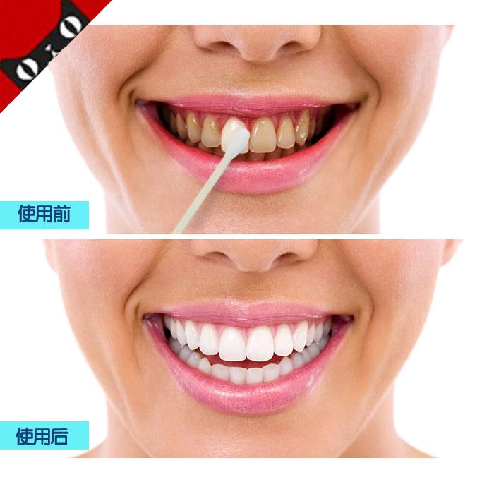 Popular Liquid Teeth Whitener Buy Cheap Liquid Teeth