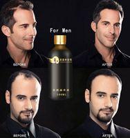 Natural protein hair treatment high quality hair loss herbs anti hair loss lotion