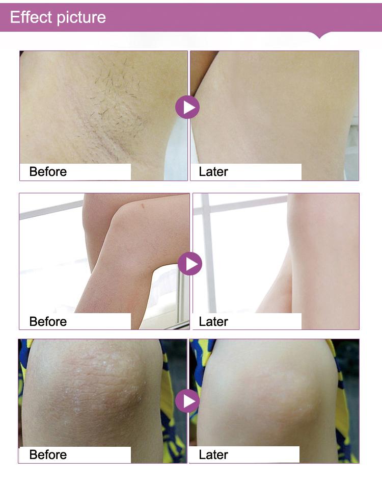 de Clareamento Creme de Massagem de Pernas