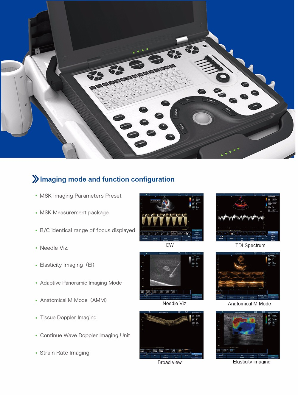 High precision MY-A039A medical portable digital laptop color doppler cardiac ultrasound scanner machine equipment for Heart