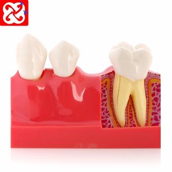 4 Times Anatomy Teeth Model - Buy Tooth Anatomy Model,Dental Teeth ...
