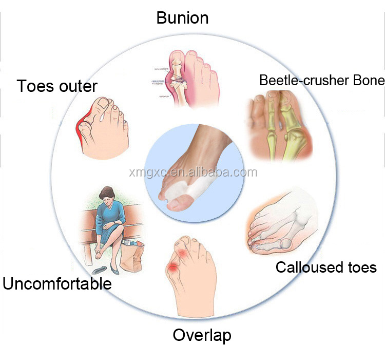 Where To Buy Orthopedic Shoes In Singapore