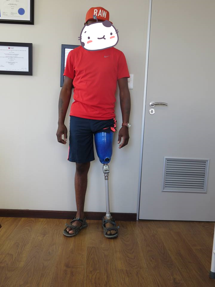 Artificial limb orthopedic prosthetic designed knee leg