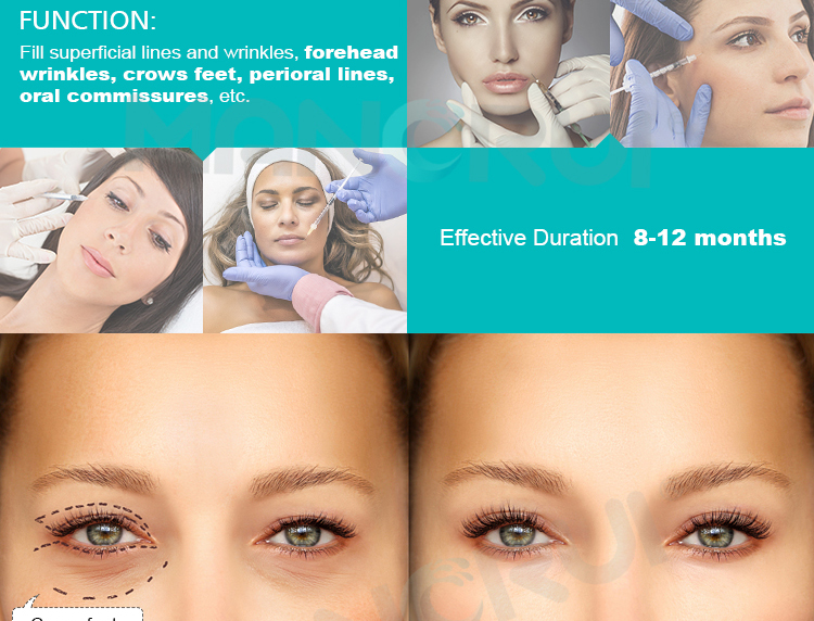 Hyaluronate acid injection dermal filler for wrinkle removing