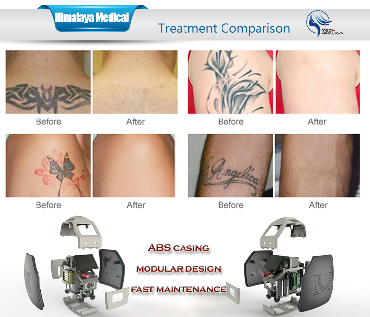 Q switched nd yag laser tattoo removal and nail fungus for Tattoo removal products