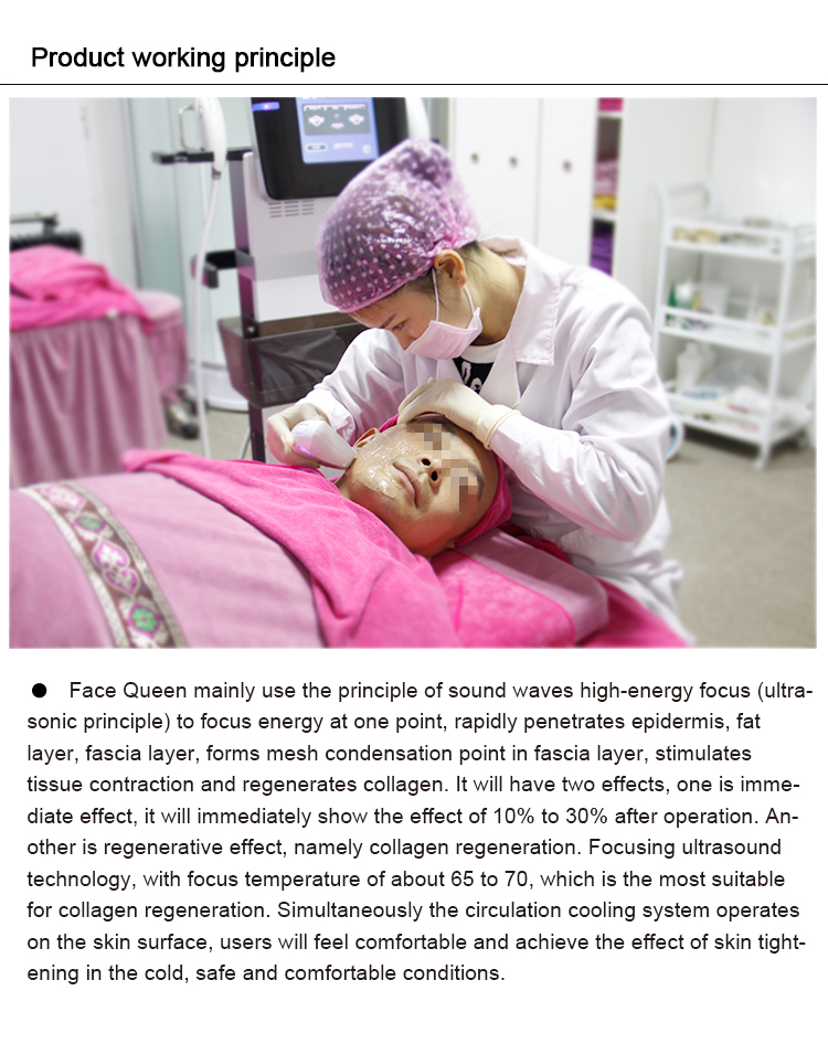 Pain free high focus ultrasonic cryo face lift and wrinkle removal skin rejuvenation face queen machine