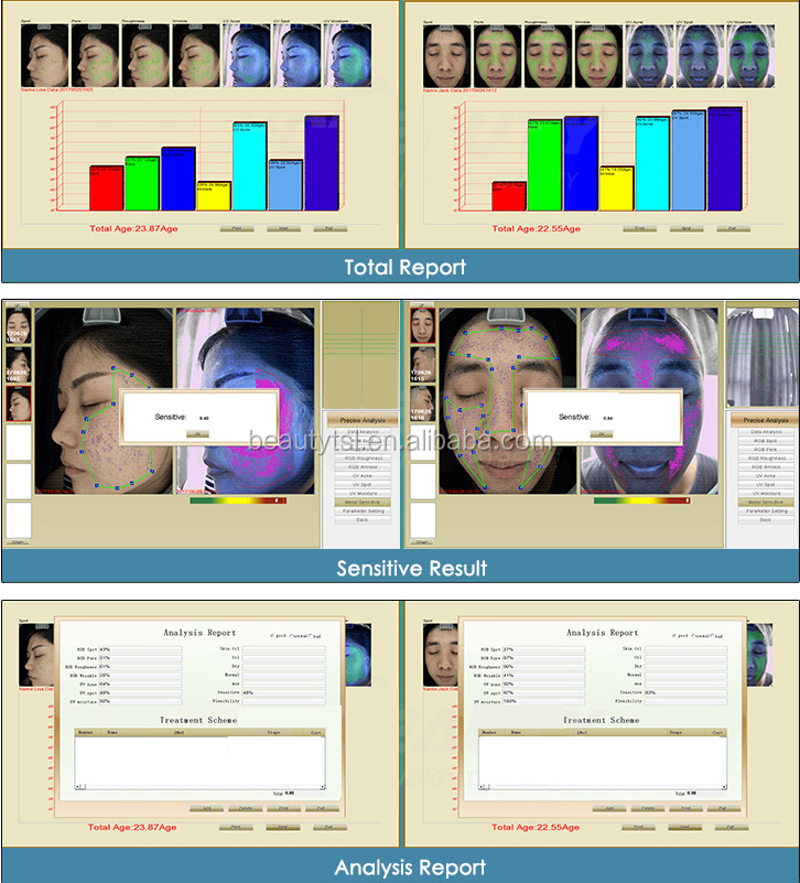 LINGMEI 3D facial magic mirror skin analysis skin analyzer machine for skin test