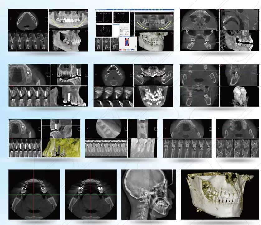 YSX1005E Guangzhou supplier  high end High Frequency 3D image CBCT digital Panoramic Dental X ray