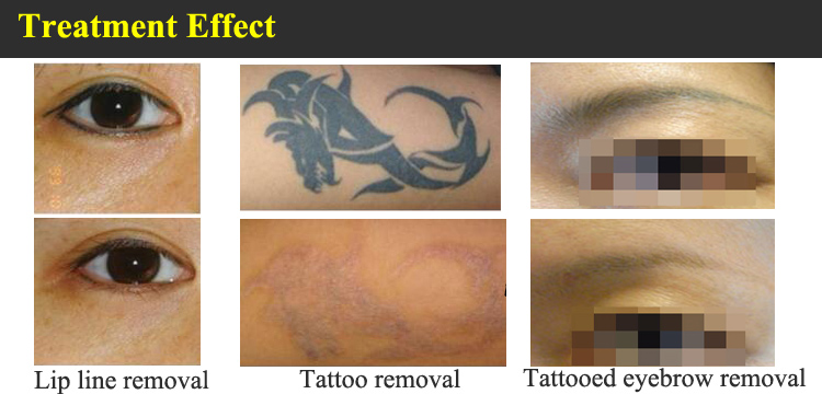 Yag Laser Machine Tattoo Verwijdering Spot Pen Qswitch Nd Voor Traktatie Alle Inkt Kleuren