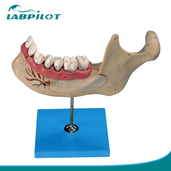 6 parts teeth model set incisor teeth canine and first molar teeth
