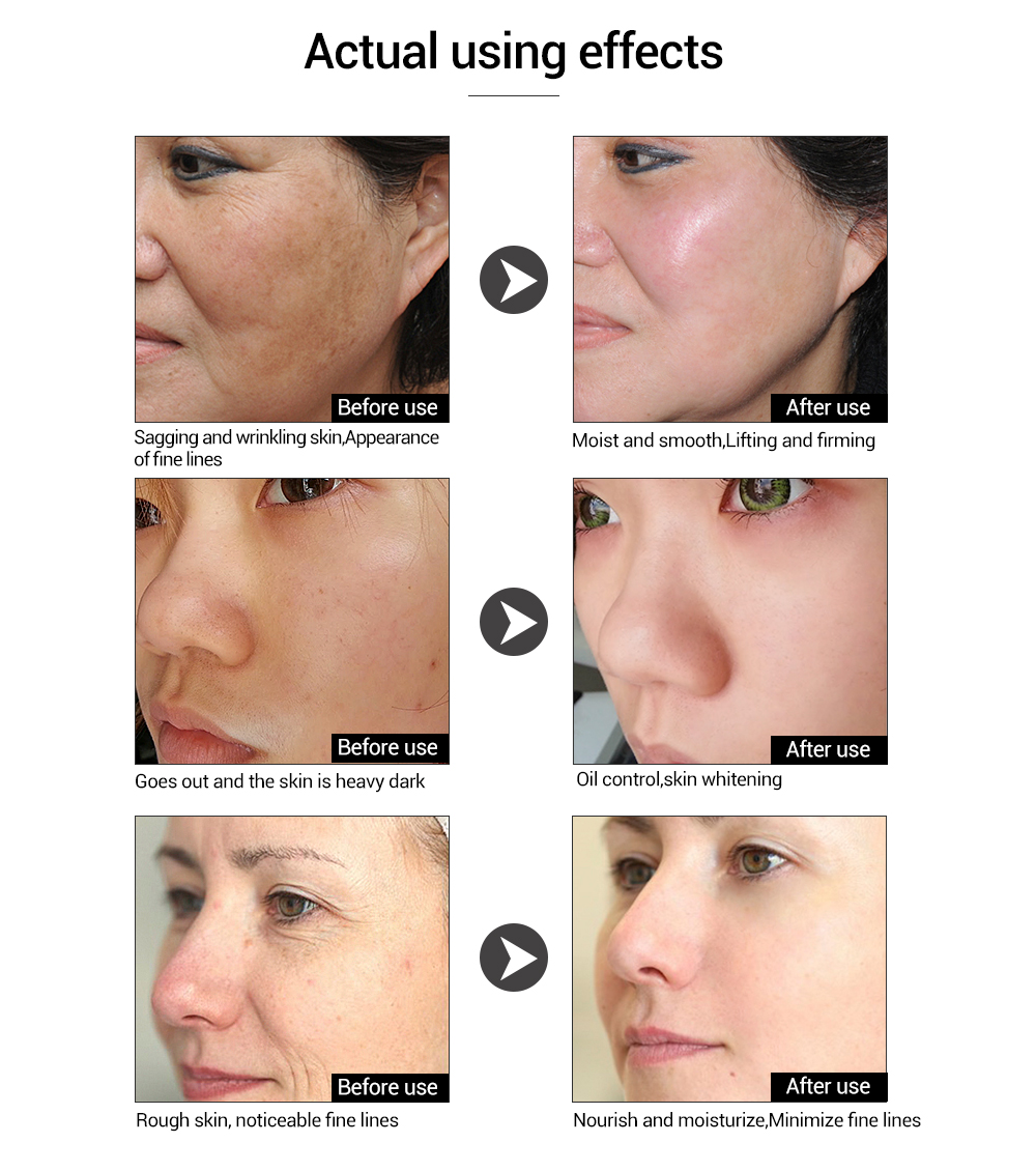 LANBENA anti-wrinkle moisturizing serum hyaluronic acid