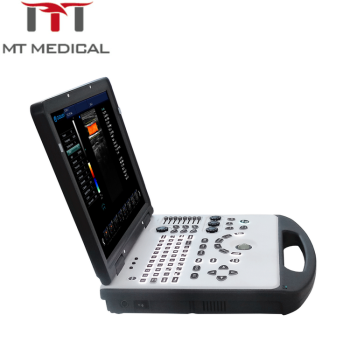 Hospital Equipment Portable Ultrasound Machine With Best ...