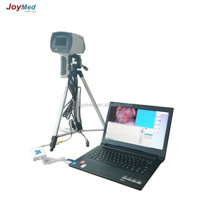 digital video colposcope used in home or clinic