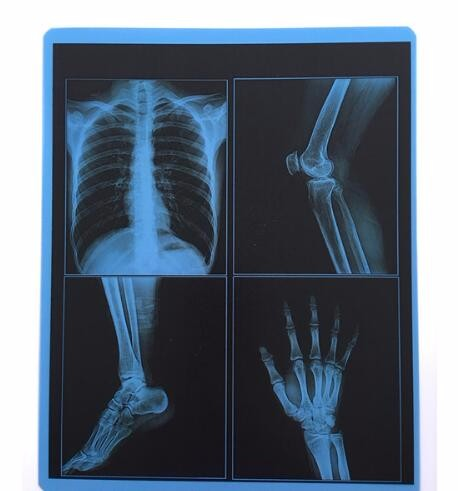 Картинки по запросу рентгеновская пленка бу