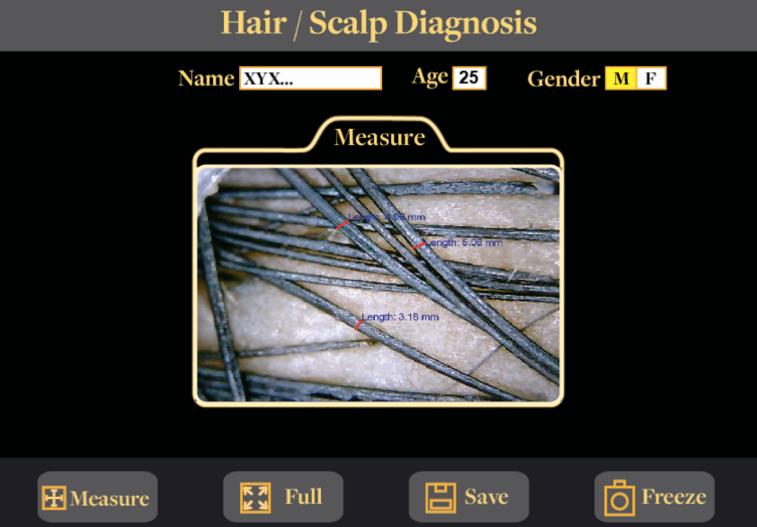 microscopic hair and scalp analysis machine