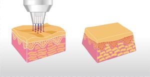 Trẻ hóa da Y Tế Plasma thiết bị, Plasma Y Tế, Plasma Y Tế Nhà Cung Cấp