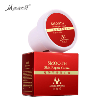 Maternidade Body Stretch Marks Remoção da cicatriz Smooth Skin Repair Cream