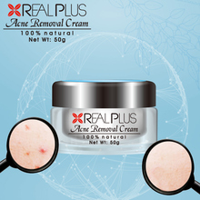 Young people loved best pimple cream remove acne effectively