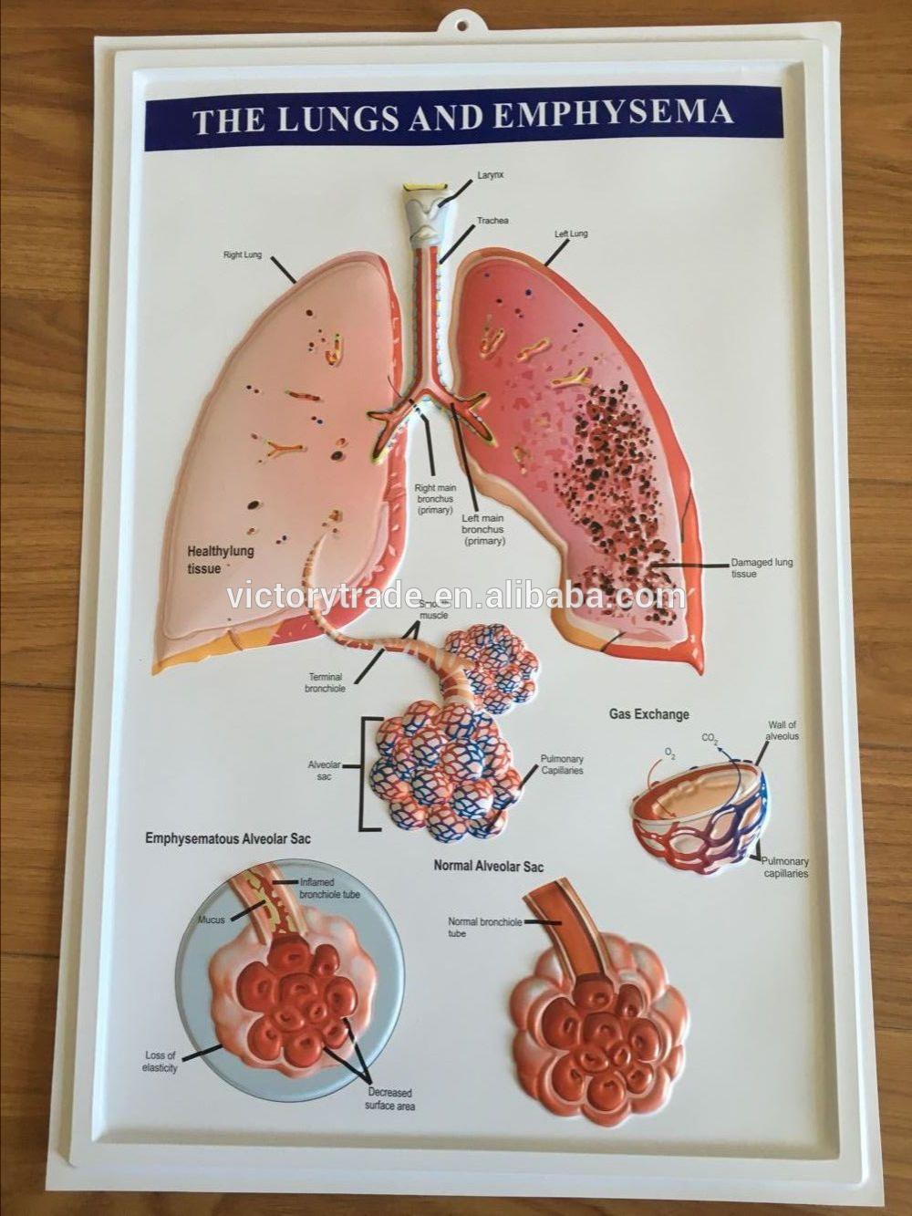 V-gf019 Promocional 3d Sistema Digestivo Anatomía Médica Gráfico De ...