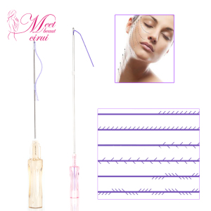 Absorbable Miracu Thread Lift, Absorbable Miracu Thread Lift