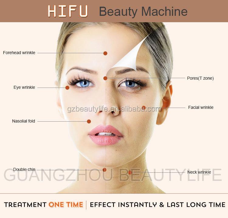 Korea-HIFU-Technologie wrinkel entfernung / hifu Gesichtshebemaschine / hifu Anti-Falten-Maschine