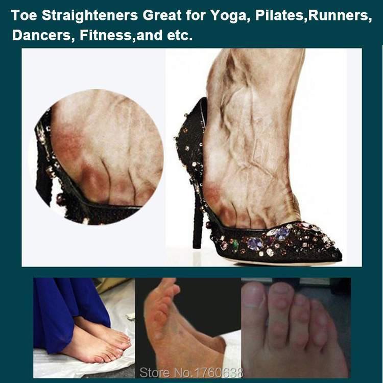 Arthritis thumb orthoplast orthotic