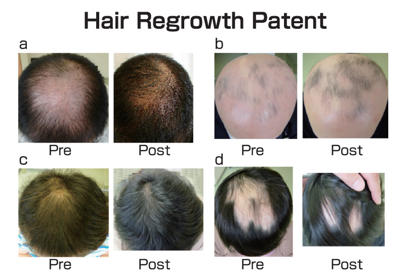 Most Effective Anti-Aging Natural Hair Growth Pills For Men