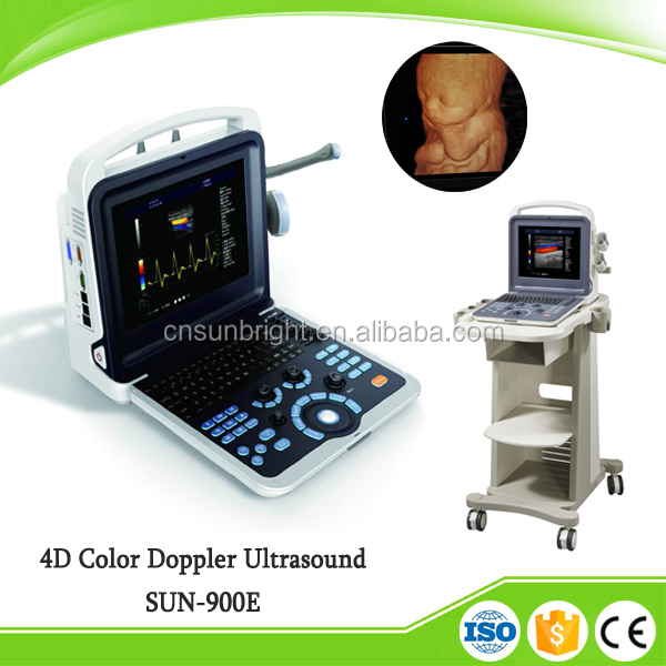 4D Vascular doppler color portátil de ultrasonido doppler con sonda convexa