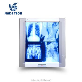 30bdbb94e Jinde JD 01 ahi único banco radiaography led de la película de rayos X  médicos de
