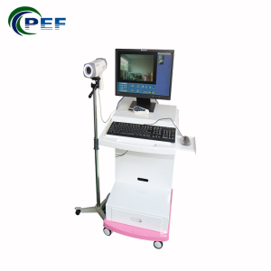 High quality digital electronic colposcope equipment