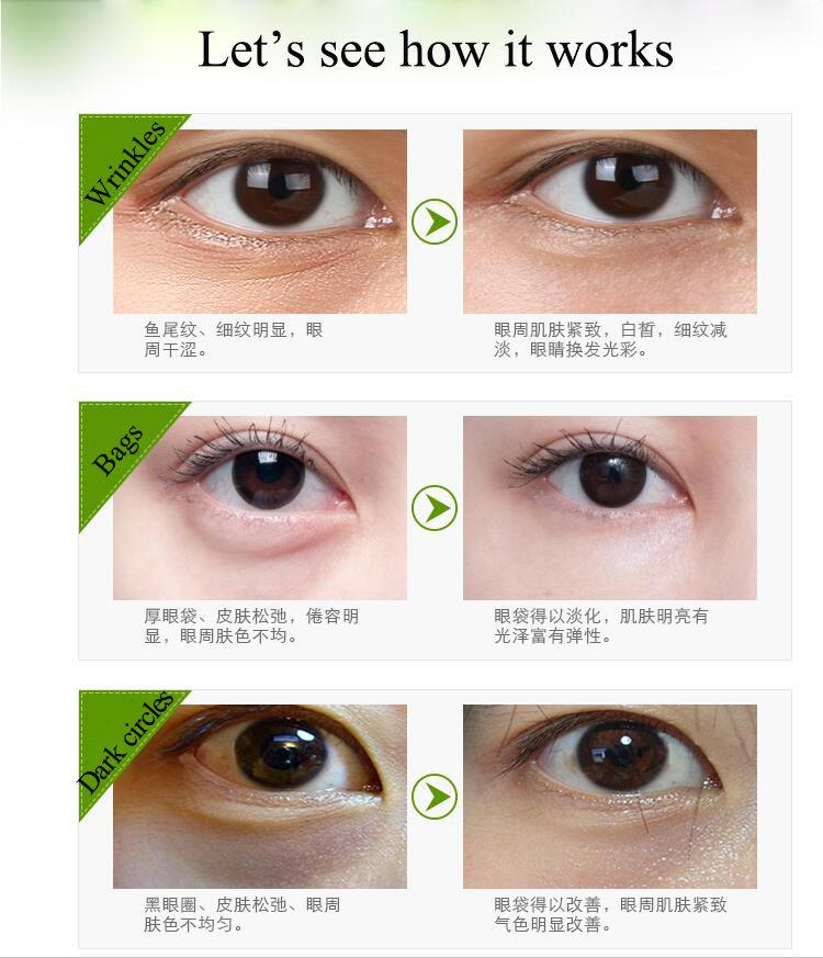 private label reducing puffiness dark circles wrinkles eye bags eye cream