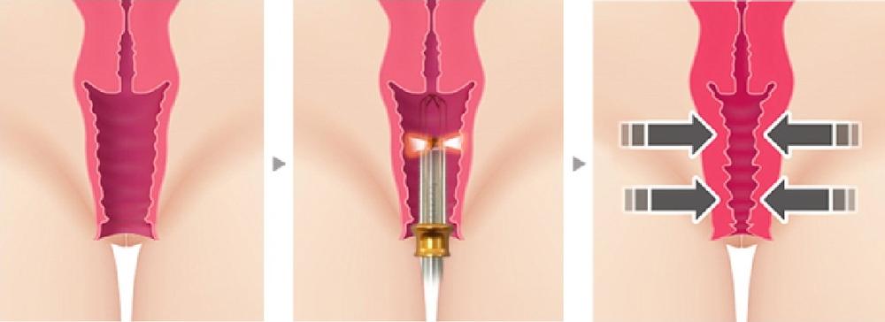 Laser Vaginal Tightening In Toronto