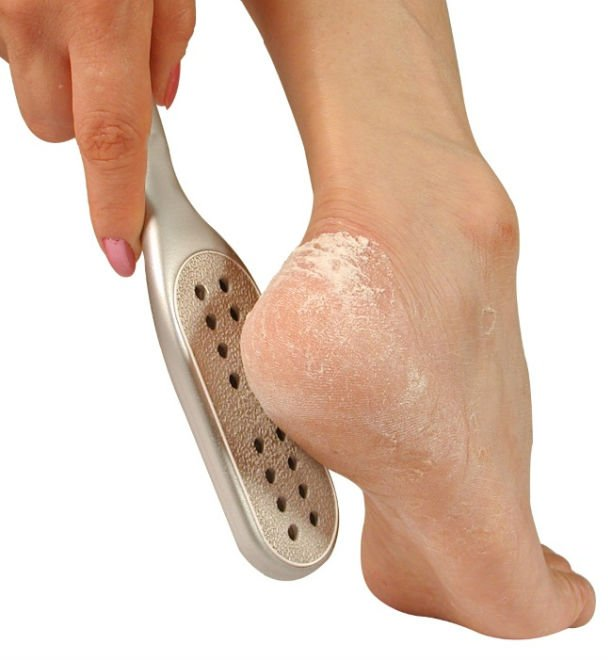 Pedicure, Foot File, Callus Remover