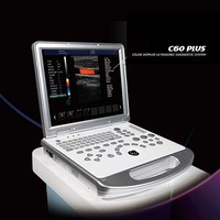 china portable color doppler ultrasound machine price
