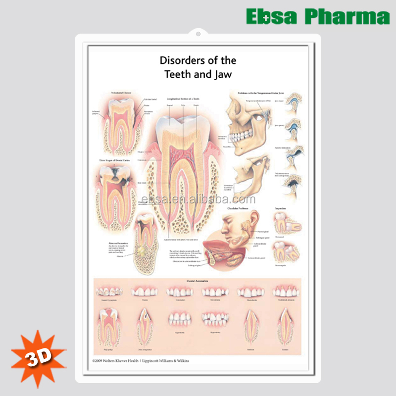 3d Medical Human Anatomy Wall Charts Poster Disorders Of The