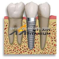 implantes dentales titanium