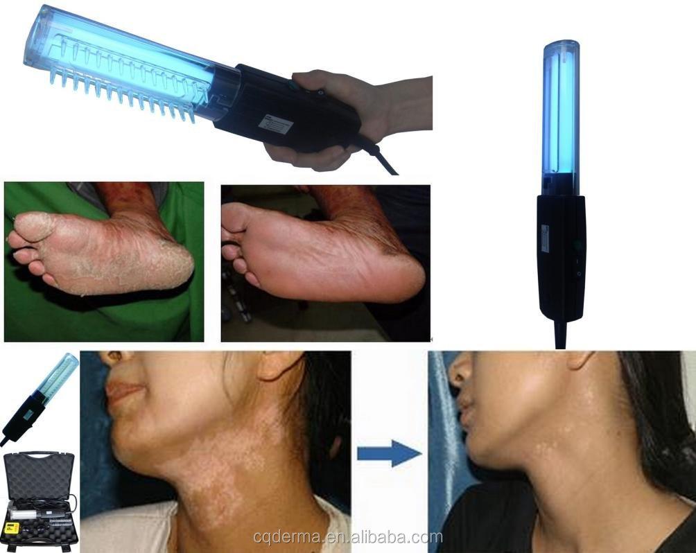 Narrowband Uvb Phototherapy Lamp, Narrowband Uvb Phototherapy Lamp ...
