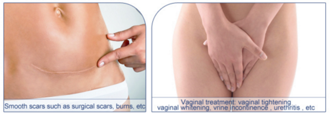 professional CO2 laser vaginal tightening / vaginal rejuvenation / vaginal care machine